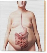 Digestive System Of Obese Man Wood Print