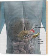 Distal Pancreatectomy Wood Print