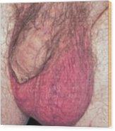 Epididymo-orchitis From Self Catheterisation Wood Print