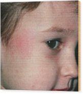 Fifth Disease: Slapped Cheek Mark On Boy Wood Print