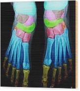 Foot X-ray Wood Print