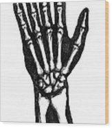 Hand Bones Wood Print