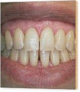 Healthy Adult Teeth Wood Print