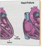 Healthy Heart Vs. Heart Failure Wood Print