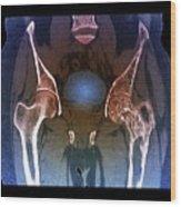 Hips In Paget's Disease Wood Print