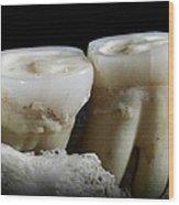 Homo Heidelbergensis Teeth Wood Print