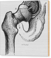 Human Hip Joint Wood Print