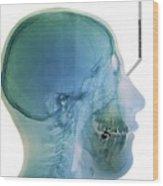 Jaw Cancer (ameloblastoma) Wood Print