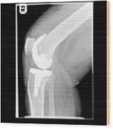 Knee After Replacement Surgery Wood Print