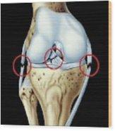 Knee Ligament Injuries Wood Print