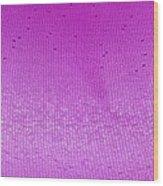 Lens Of The Eye, Light Micrograph Wood Print