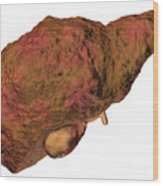 Liver Cirrhosis Wood Print