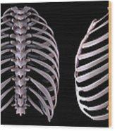 Multiple View Of The Rib Cage Wood Print