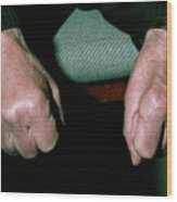 Muscle Wasting In Hand Due To Ulnar Nerve Damage by Science Photo Library