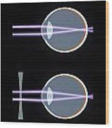 Myopia Or Short Sightedness Poster Wood Print