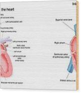 Pig And Human Heart Illustrations  Wood Print