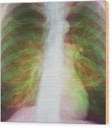 Pulmonary Emphysema Wood Print