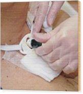 Replacing Tracheostomy Tube Wood Print