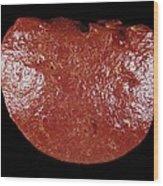 Spleen Cancer, Gross Specimen Wood Print