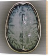 Tapeworm Cysts In The Brain Wood Print