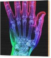 Thumb Fracture Wood Print