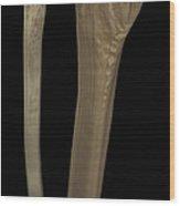 Tibia And Fibula Bones Wood Print