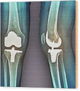 Total Knee Replacement, X-rays Wood Print