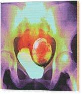 Uterine Fibroid Wood Print