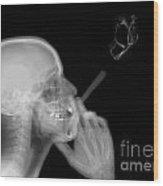 X-ray Of A Man Smoking A Cigarette  Wood Print