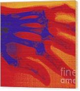 X-ray Of Hand With Rheumatoid Arthritis Wood Print