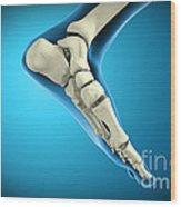 X-ray View Of Bones In Human Foot Wood Print