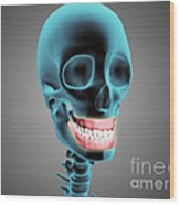 X-ray View Of Human Skeleton Showing Wood Print by Stocktrek Images