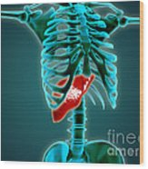 X-ray View Of Human Skeleton With Liver Wood Print by Stocktrek Images