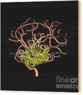 3d Angiogram Of Temporal Lobe Avm Wood Print