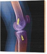 Acl Knee Repair X-ray Wood Print