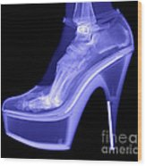 An X-ray Of A Foot In A High Heel Shoe Wood Print