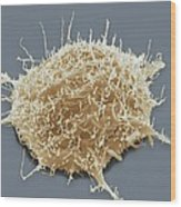 Brain Cancer Cell, Sem Wood Print