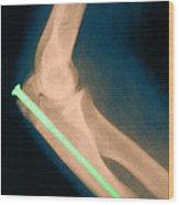 Broken Arm With Metal Pin, X-ray Wood Print