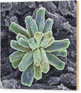Calcium Phosphate Crystal, Sem Wood Print