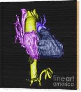 Color Enhanced 3d Cta Of Heart Wood Print