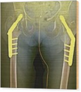 Fixed Double Hip Fracture (image 2 Of 2) Wood Print by Du Cane Medical Imaging Ltd