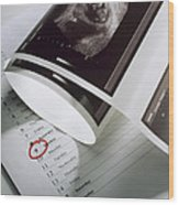 Foetus Ultrasound Wood Print