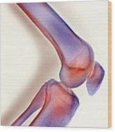 Healthy Knee, X-ray Wood Print