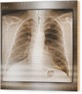 Heart And Lungs, X-ray Wood Print