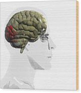 Human Brain, Occipital Lobe Wood Print