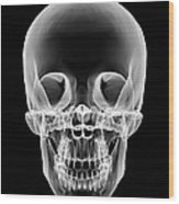 Human Skull, X-ray Artwork Wood Print