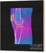 Knee Showing Osteoporosis Wood Print