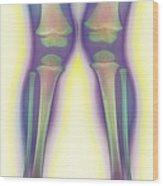 Knock-knee, X-ray Wood Print