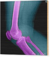 Lateral X-ray Of The Knee Wood Print