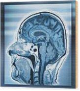 Normal Head And Brain, Mri Scan Wood Print